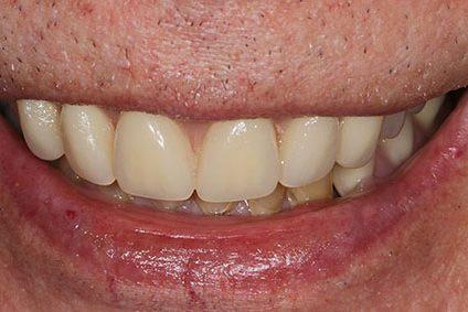 John after smile makeover at Dental Beauty Feltham in west london