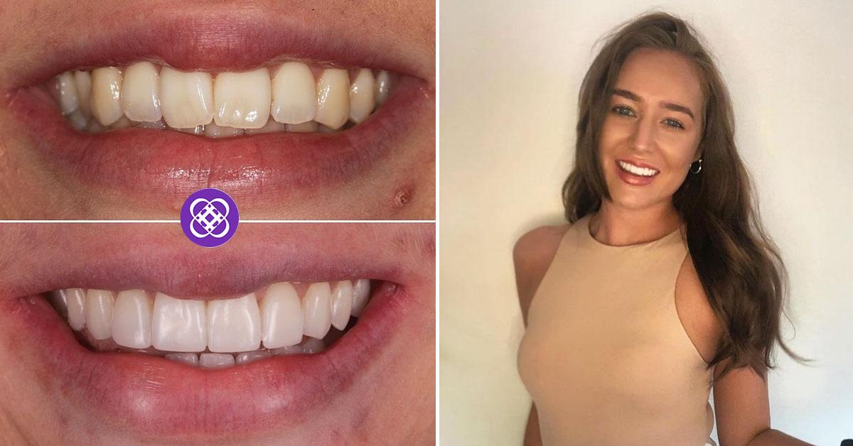 invisalign dental beauty review