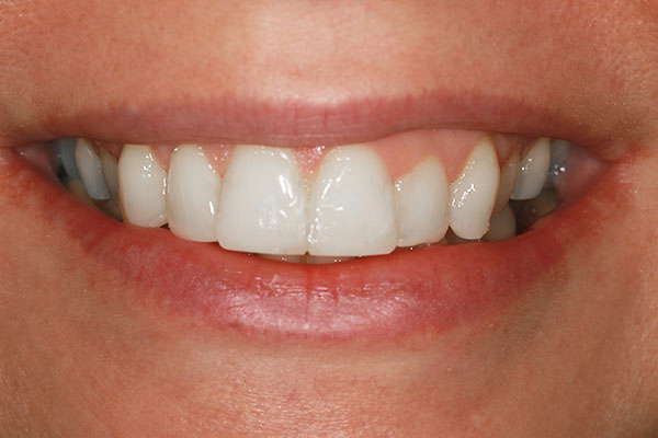 teeth straightening carlies result